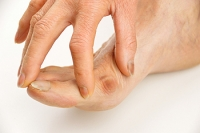Symptoms of Bunions in Children