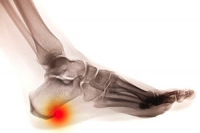 Possible Causes and Symptoms of  Heel Spurs